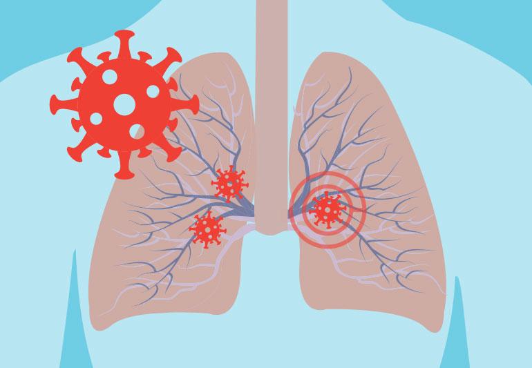 Што им прави COVID-19 на белите дробови?